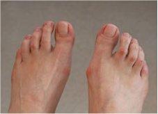 psoriasis fødder behandling